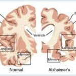 Alzheimer's Can Be Overturned As Per New Research